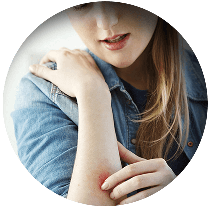 Panaceo Allergien
